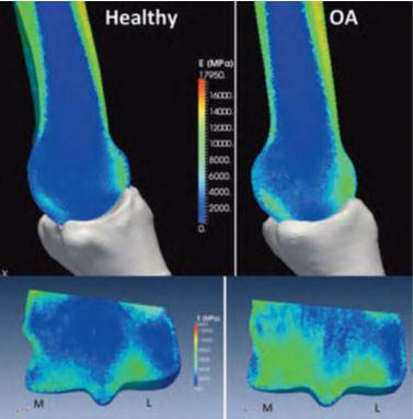 (image) Bone-density.--Healthy-and-Osteoarthritic